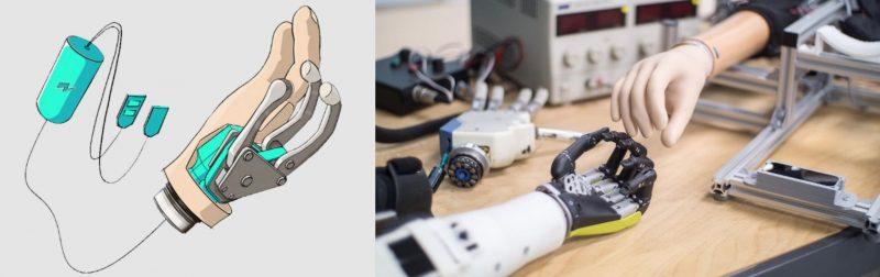 Main myoélectrique et prototype de prothèse